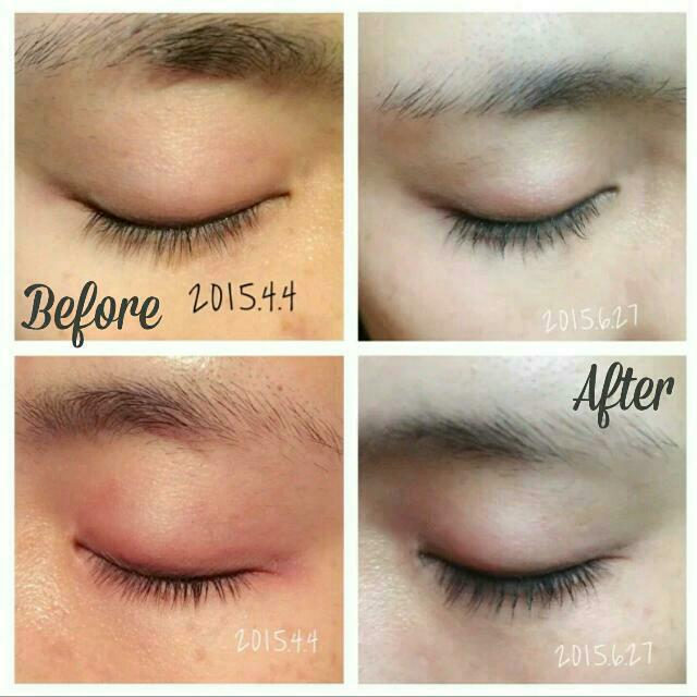e5e0af03bc5 ... Authentic Careprost Eyelash Growth Serum Generic Latisse Luxury ...