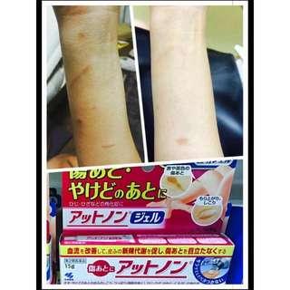 小林去疤藥 日本代購