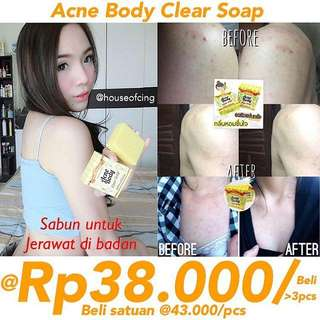 Acne Body Clear Soap sabun jerawat badan