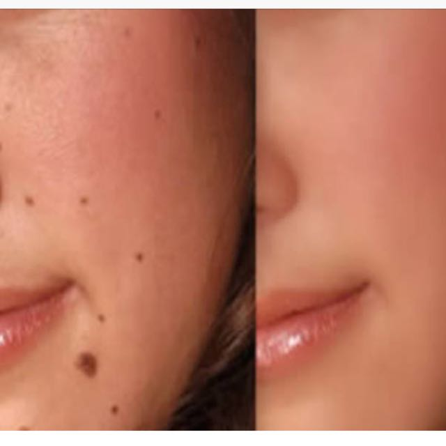 Removal Of Mole/ Oil Seeds/ Milia Seeds/ Skintag