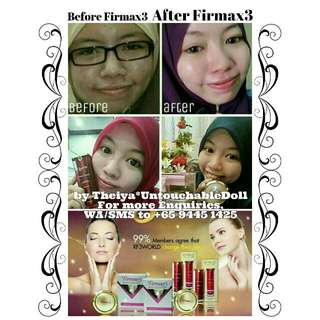 ACNE/PIMPLE PROBLEMS?? Try FIRMAX3 World Miracle All-In-One Beauty & Health Therapy Cream which you won't expect it's Crazy, Instantly Effectiveness that You Would Need Daily.