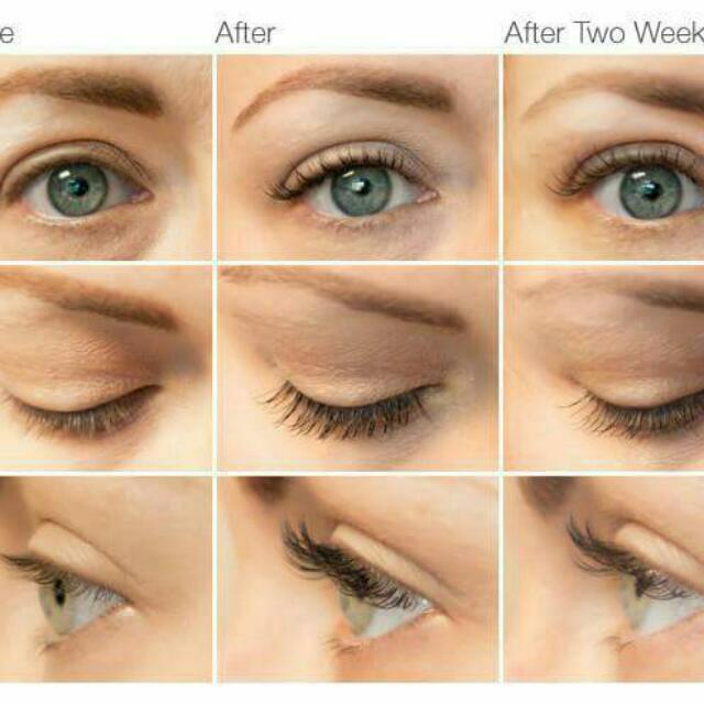 Careprost Longer Fuller Darker Eyelash Health Beauty On Carousell
