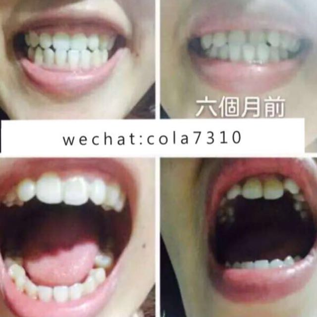 澳洲牙齒矯正器