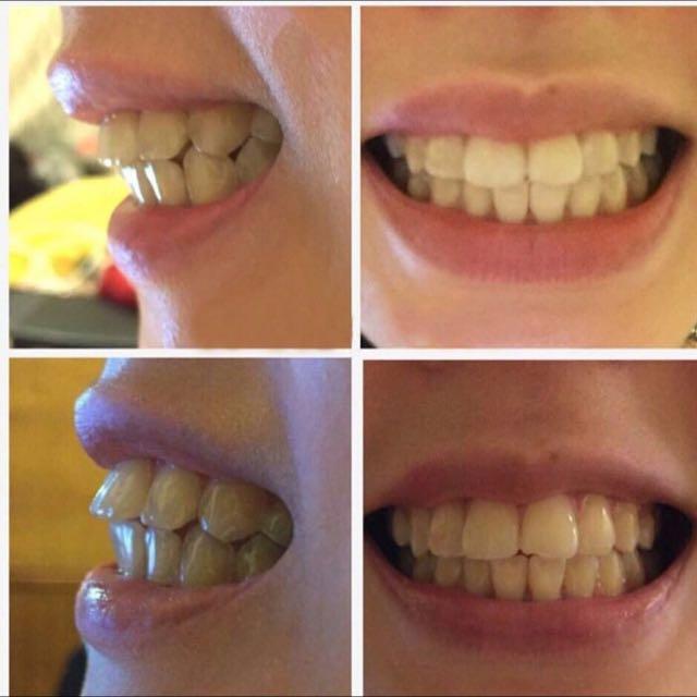 澳洲矯正牙套
