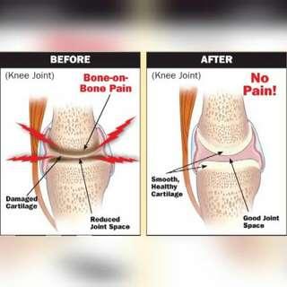 Pil Merawat Sakit Lutut atau Sendi