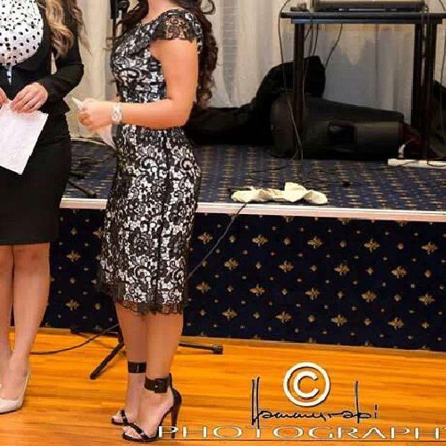REVIEW Lace Dress