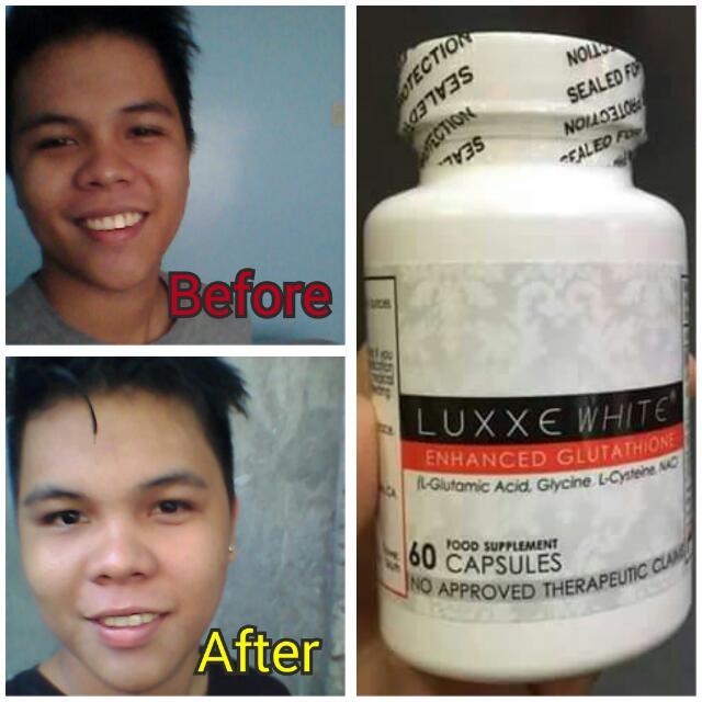 LUXXE WHITE (Enhanced Glutathion) on Carousell