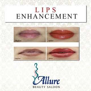 Allure Beauty Saloon's Lip Enhancement