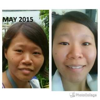 Skin, Weight Management, Healthy Active Lifestyle