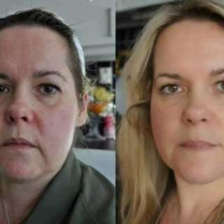Anti- Aging Skin Care System