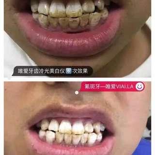 美牙美牙神器