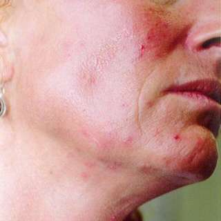 Magic Cream Real Cure For Skin Allergies Like Scabies Demodex Eczema Itchiness Severe Acne Pimples