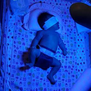 Phototherapy Lamp Blue Lamp For Jaundice