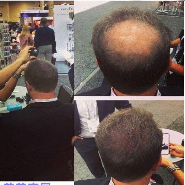 加拿大-頂豐TOPPIK增髮纖維2.5個月量