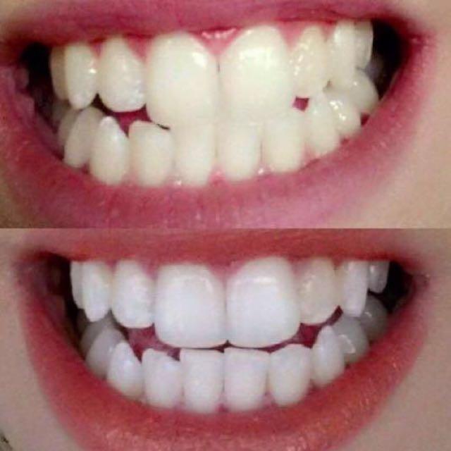 Teeth Whitening Tooth Paste