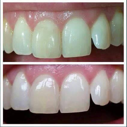 Whitening Toothpaste - AP24