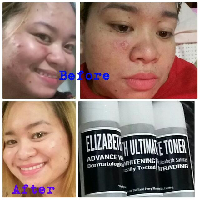 Pimples Solutions,face Scars,pekas,at Iba Pa.. All In One Elizabeth's Ultimate Toner