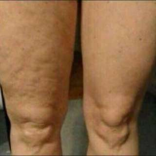 Stretch Marks and Cellulite Remover