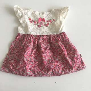 1 Year Old Dress