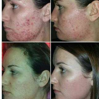 Luminesce Products