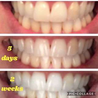 👄 No bleaches  👄 No peroxide or harsh chemicals  👄 No sugar 👄 Dentist recommended 👄 Safe for kids - they ❤️ it 👄 Amazing for wine 🍷 coffee ☕️ and nicotine stains 👄 Whitens caps and veneers  👄 Way less 💰 than whitening!