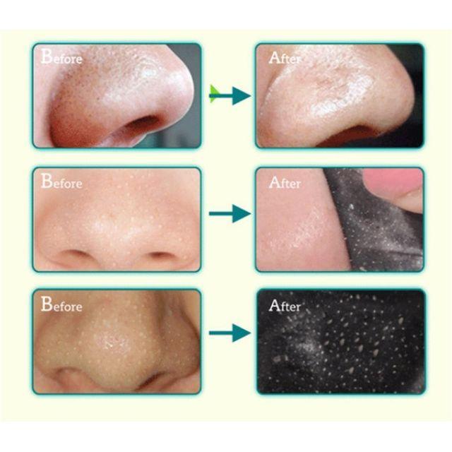 PILATEN BLACKHEAD REMOVER Face Mask Pore Cleansing Black Heads Strip Nose Skin