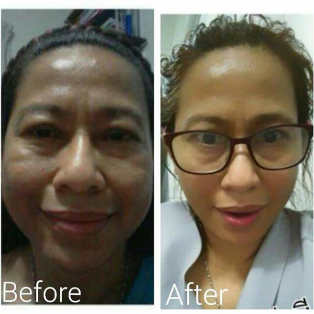 Natural V-Shape Facelift Tecnique From Thailand Course