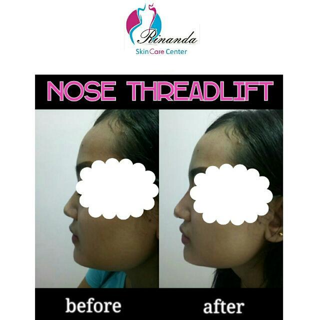 Tanam Benang Hidung