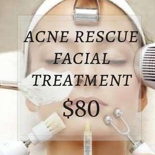 Acne Rescue Facial Treatment