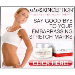 Erase Stretch Marks with Skinception Intensive Stretch Mark Therapy