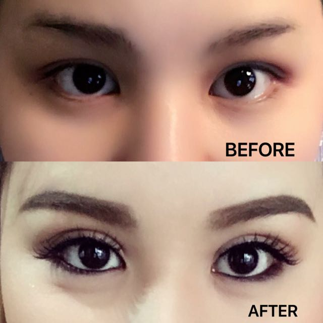 Sulam Lipatan Kelopak Mata (Non-Surgery Eyelid-Stitching) Combined with PLASMA LASER (first in Indonesia)