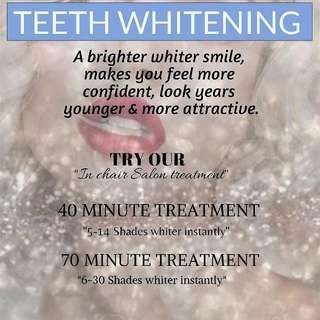 Laser Teeth Whitening 40 Minute 5 -14 Shades Lighter Instantly.