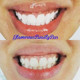 Laser Teeth Whitening 6~30 Shades Lighter Instantly. 70 Minute Treatment.