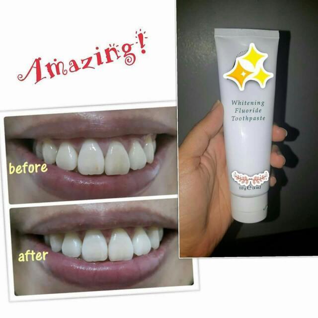 Ap24 Teeth  Whitening