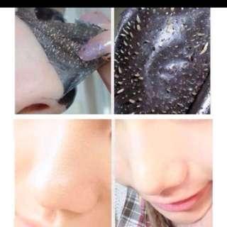 Black Pore Strips