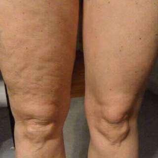 Cellulite Free