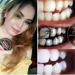 TURBO CARBON TEETH WHITENING