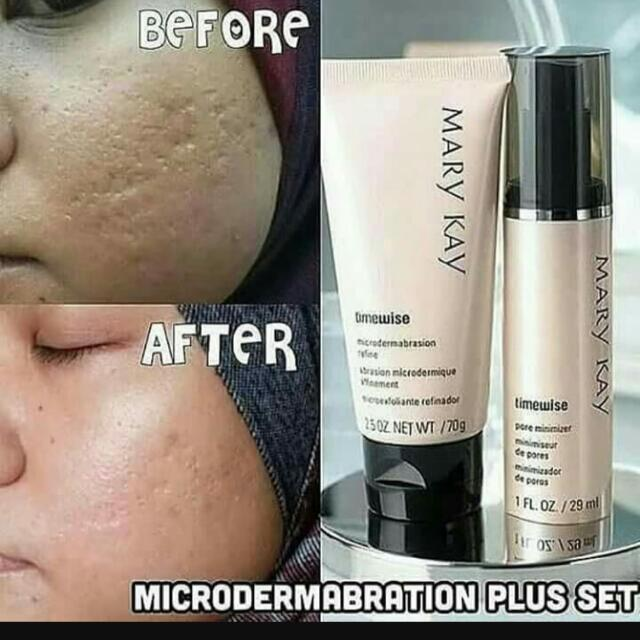 Marykay Timewise Microdermabrasion Plus Set Refine And Pore