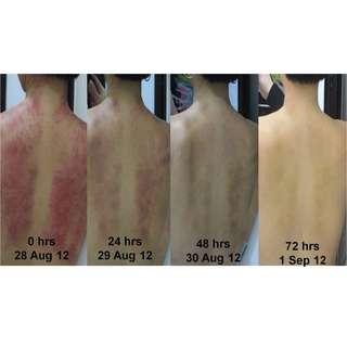 Massage ,Guasa therapy  @  Blk 24 Sin Ming Road #01-49