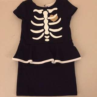 H&M Skeleton Dress