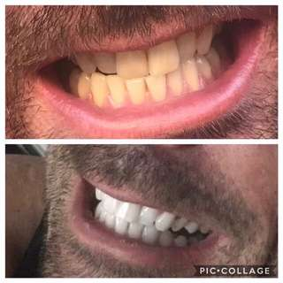 Magical Whitening Toothpaste