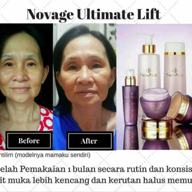 Novage Ultimate Lift Sett