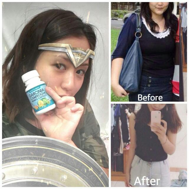 Skin tightening products after weight loss picture 2