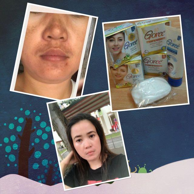 💯original Goree Day & Night Whitening Cream And Whitening Soap