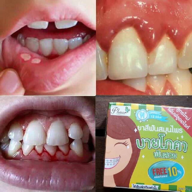 Phoca Whitening Herbal Toothpaste Pasta Pemutih Gigi Health