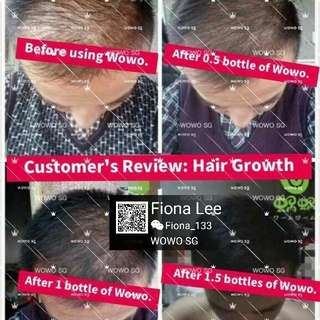 Remedy for Hair loss, thinning, bald