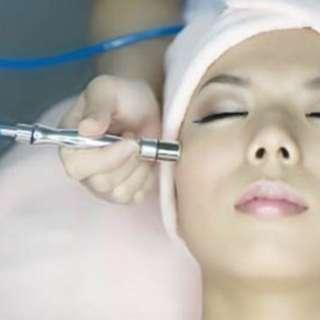 Diamond Peel Facial Therapy
