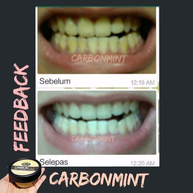 Carbonmint Pemutih Gigi Health Beauty Skin Bath Body On