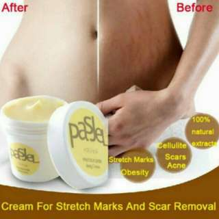 Stretch Marks Scar Removal Cream Postpartum Maternity Skin Body Repair Cream