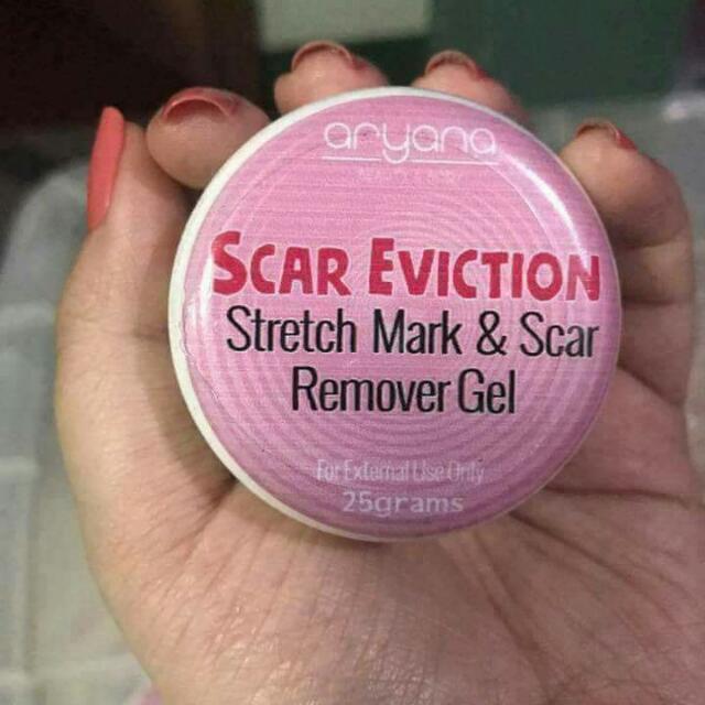 SCAR EVICTION BY ARYANA